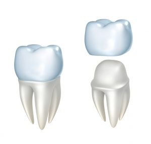 How sensitive should I be after getting dental crowns in Richardson?